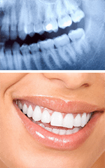 Dental Radiography and X-Ray Services